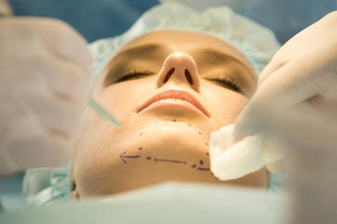chin-cosmetic-surgery